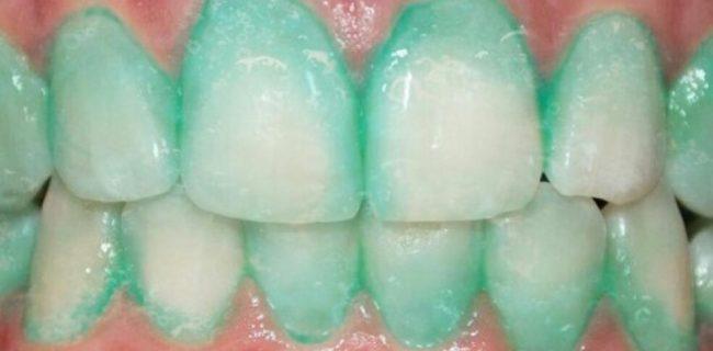 خمیر دندانی که از سکته قلبی جلوگیری می کند!