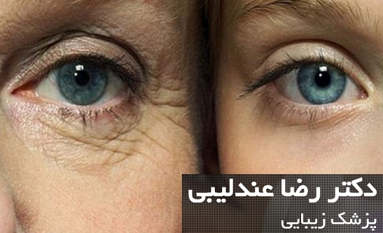 How-to-remove-under-eye-wrinkles-e1519000750652.jpg
